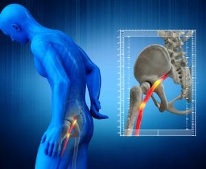 Sciatica: What it Is and How to Treat It